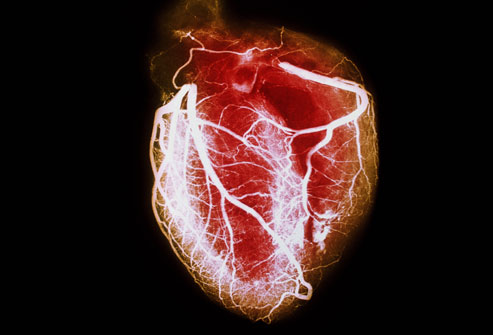 Exercise and Heart Disease Statistics
